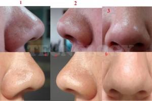 quitar puntos de la nariz